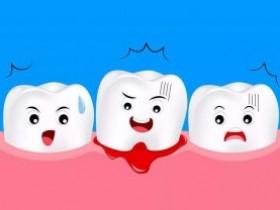 侵袭性牙周炎的有效疗法